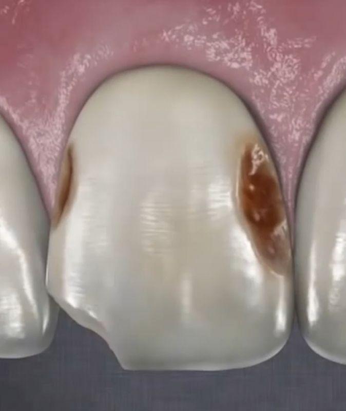 دلایل زیادی باعث پوسیدگی دندان موثر است
