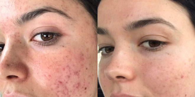 جوشهای صورتم را چگونه درمان کنم