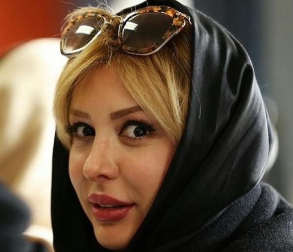 ماجرای کلینیک زیبایی غیرمجاز نیوشا ضیغمی+ واکنش وزارت بهداشت