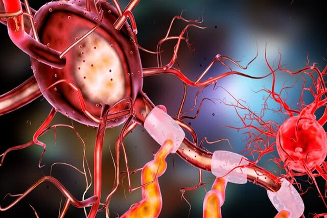 محققان ایرانی حسگر تشخیص آلزایمر میسازند