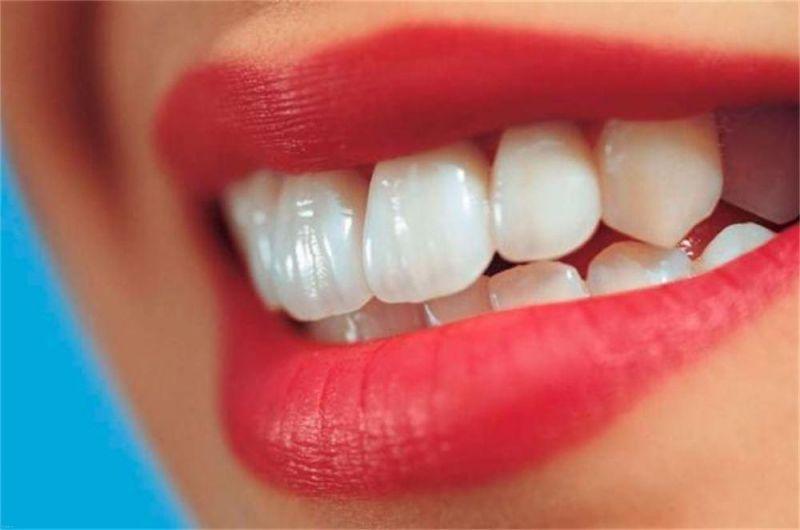 مهم ترین دلایل سفید شدن دندان ها