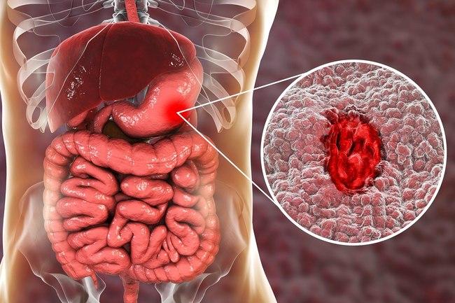 خونریزی معده و هشدار برای سالمندان مصرف کننده آسپرین