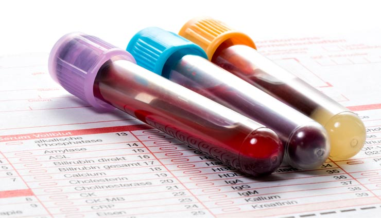 آشنایی با آزمایش های بارداری: