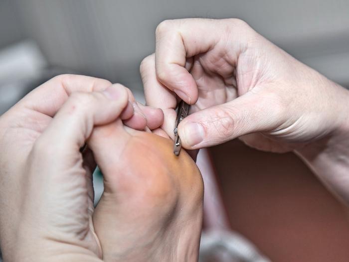 6 روش طب سنتی برای درمان میخچه