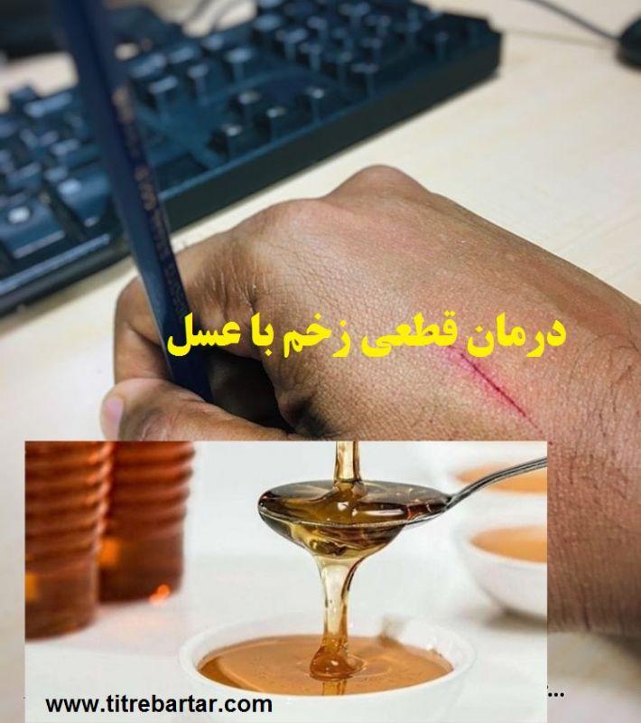 درمان قطعی زخم با عسل