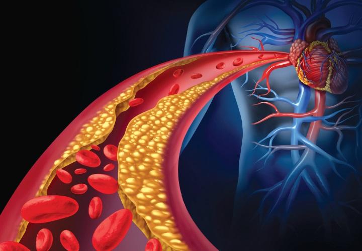 کاهش چربی خون با 12 دمنوش و میوه