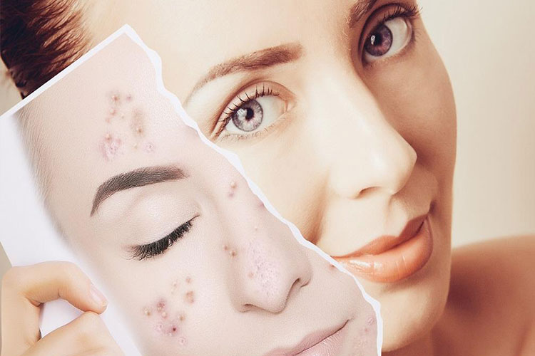 برای داشتن پوستی صاف و یکدست: