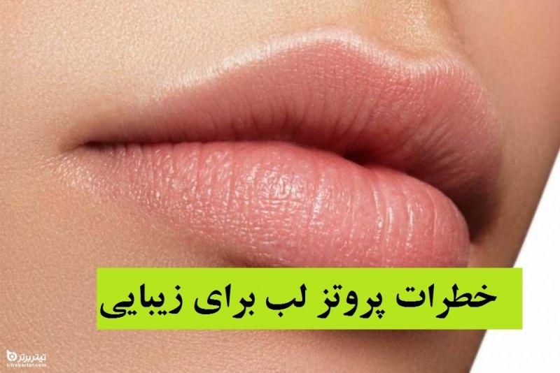 خطرات پروتز لب برای زیبایی