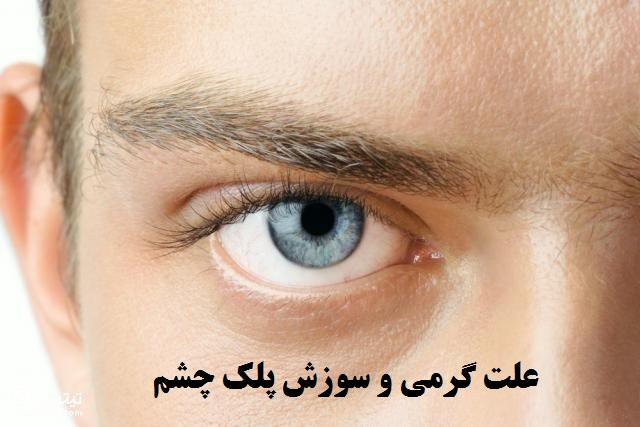 علت گرمی و سوزش پلک چشم