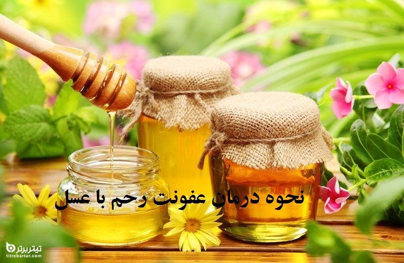 نحوه درمان عفونت رحم با عسل