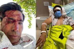 ماجرای تصادف شدید امیرحسین صادقی+عکس