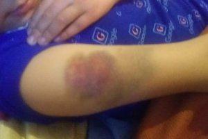 فیلم| ماجرای تنبیه بدنی دانش آموز قزوینی!+عکس
